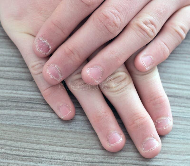 少年的手有毛刺的在指甲盖 啃指甲盖 免版税库存图片