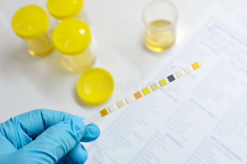 尿液分析 免版税库存图片