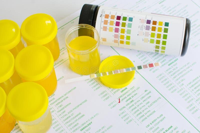 尿液分析 免版税图库摄影