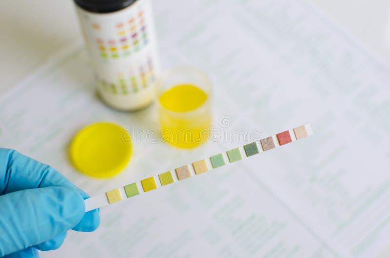 尿液分析 库存图片