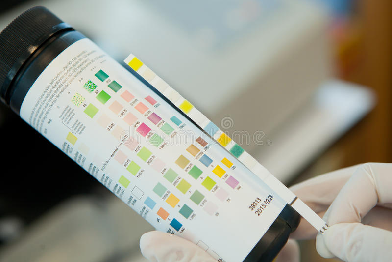 尿诊断试剂试验片 图库摄影