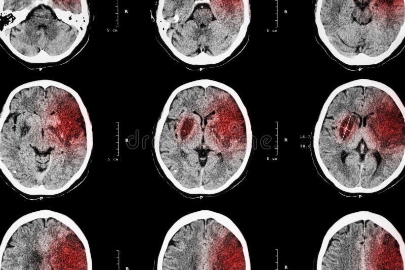 局部缺血的冲程:(脑子展示大脑梗塞CT在左额骨的-世俗-顶叶) (神经系统背景 免版税库存照片