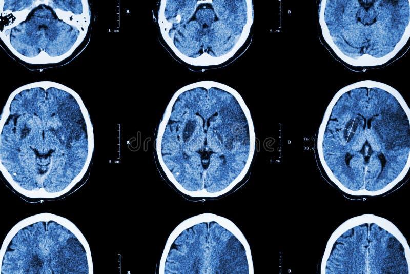 局部缺血的冲程:(脑子展示大脑梗塞CT在左额骨的-世俗-顶叶) (神经系统背景 免版税库存图片