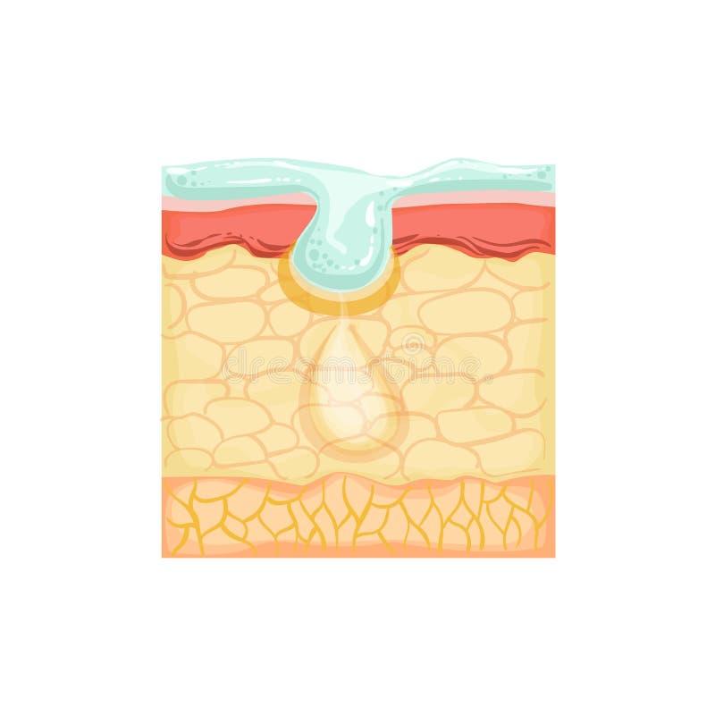 展示与整容术洗涤的皮肤学Skincare解剖信息例证皮肤问题治疗 皇族释放例证