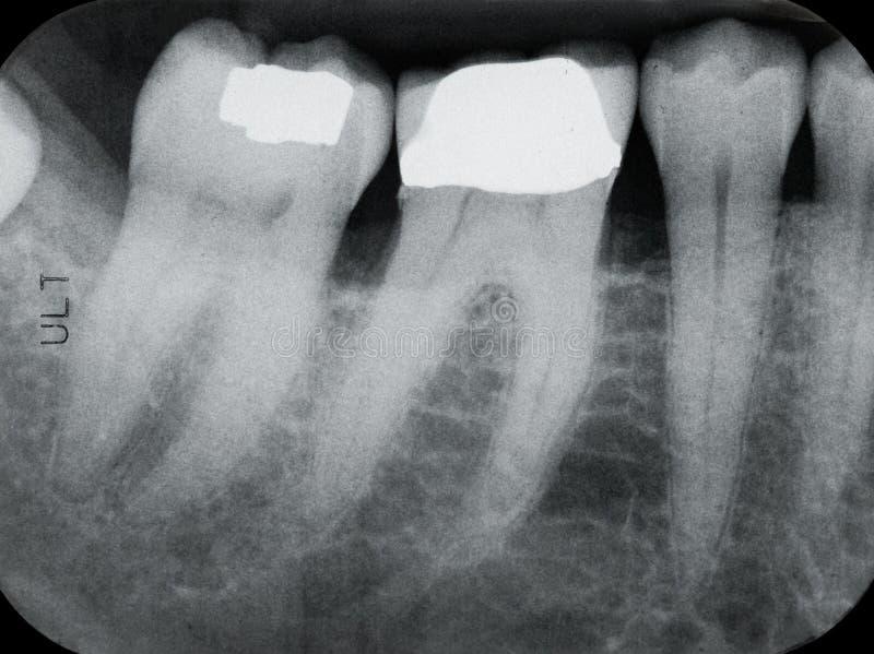 左更低的牙周光芒x 免版税库存照片