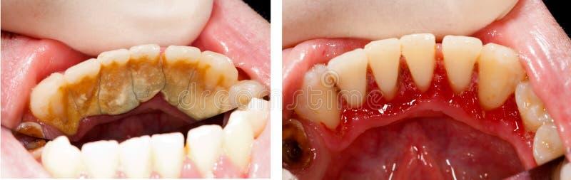 巨型的齿垢和治疗 库存照片