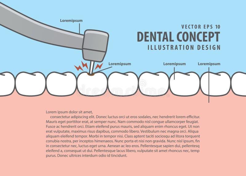 布局龋齿治疗龋信息的动画片样式或 库存例证