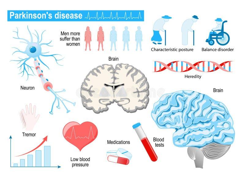 帕金森` s疾病 老年人 疾病,混乱和在地平线上方 库存例证