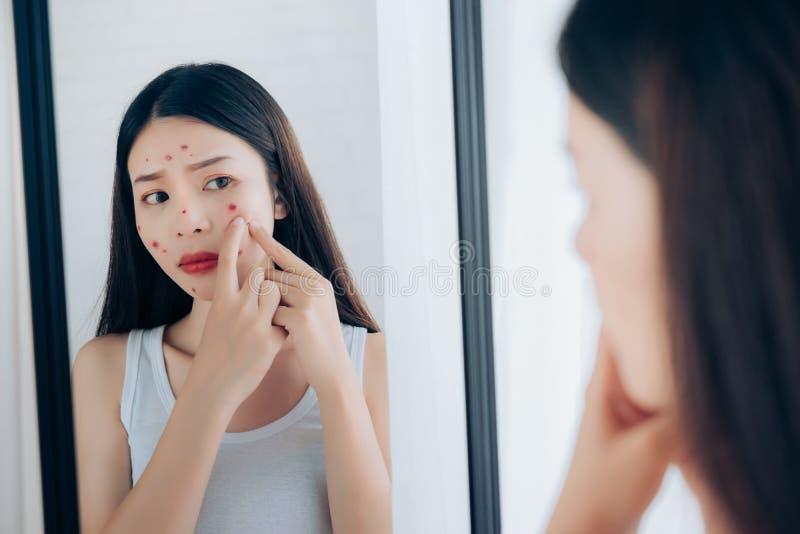 年轻亚洲妇女挤压粉刺问题面孔 免版税库存照片
