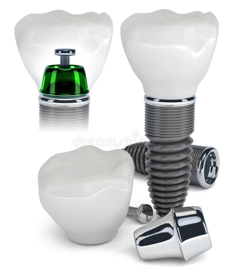 建筑牙插入物 库存例证