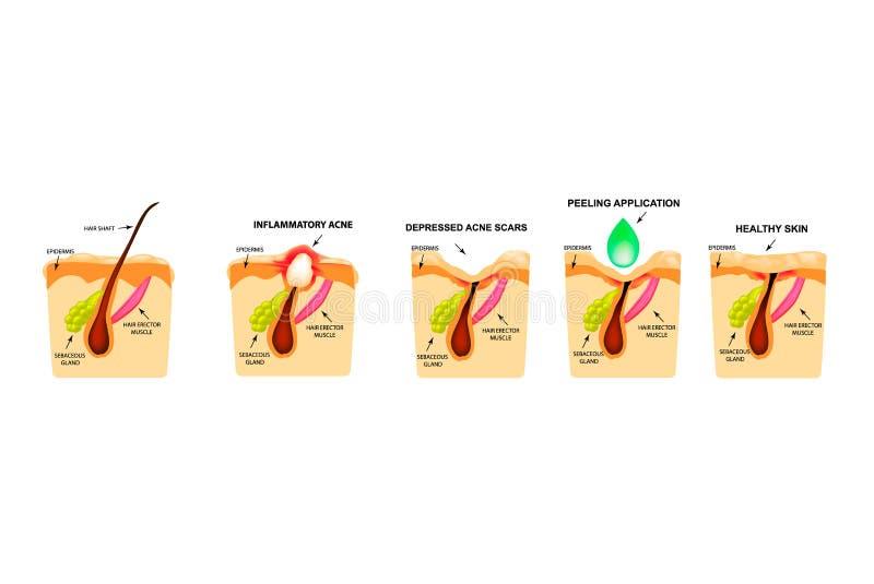 开放黑头粉刺的治疗,被激起的粉刺,粉刺囊肿 疼痛粉刺 皮肤的结构 粉刺伤痕的治疗  皇族释放例证