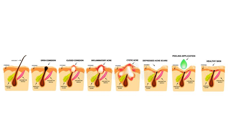 开放黑头粉刺的治疗,被激起的粉刺,粉刺囊肿 疼痛粉刺 皮肤的结构 粉刺伤痕的治疗  库存例证