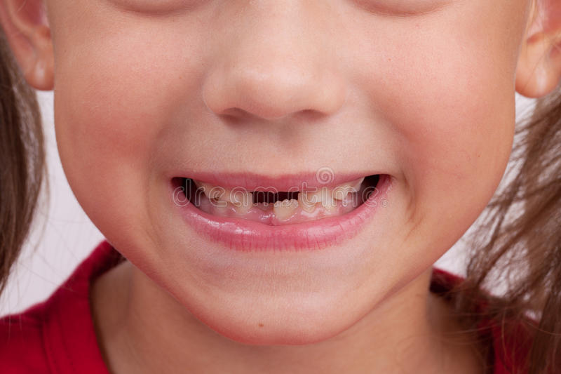张与牙的婴孩的嘴 免版税库存照片