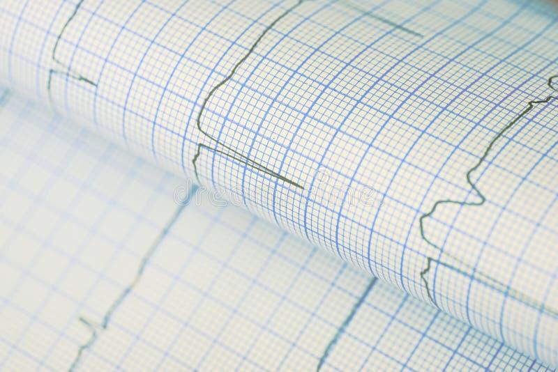 弯曲的ECG图作为一个医疗背景 库存图片