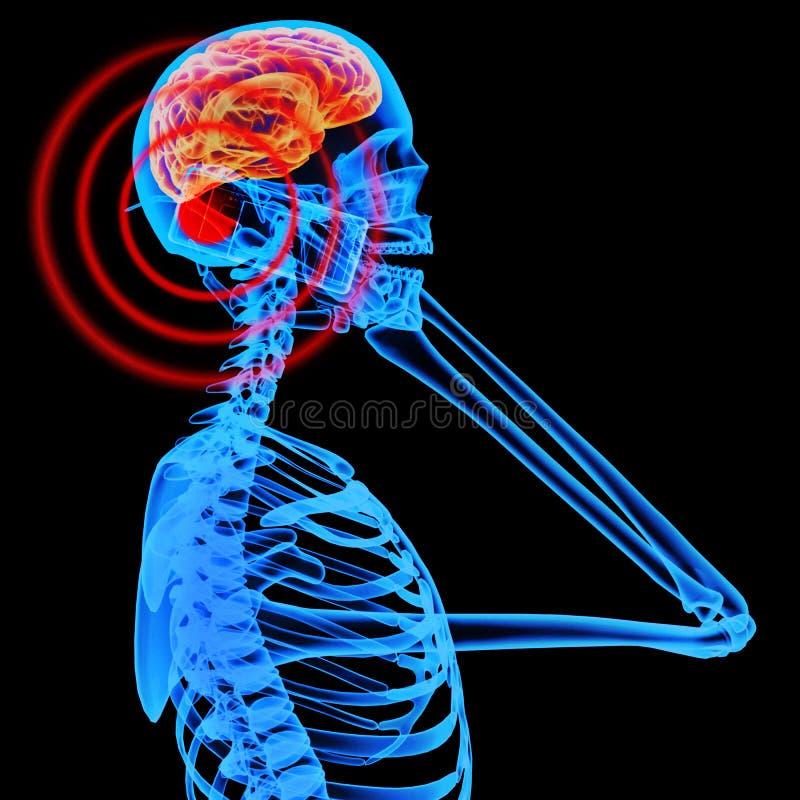 影响脑子移动电话辐射通知 库存例证