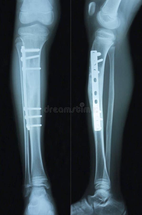 影片X-射线胫骨 库存照片