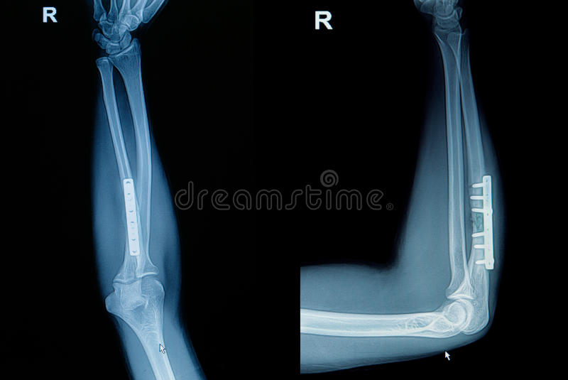 影片X-射线腕子破裂 库存照片