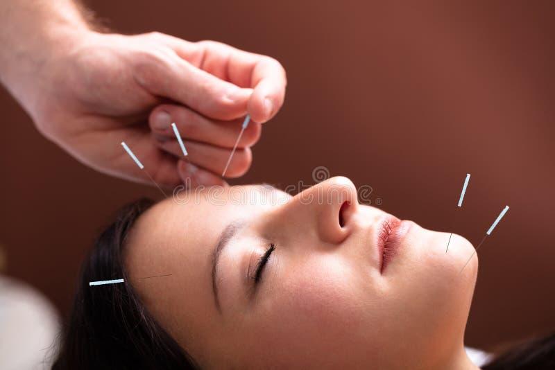 得到在她的面孔的妇女针灸治疗 免版税库存图片