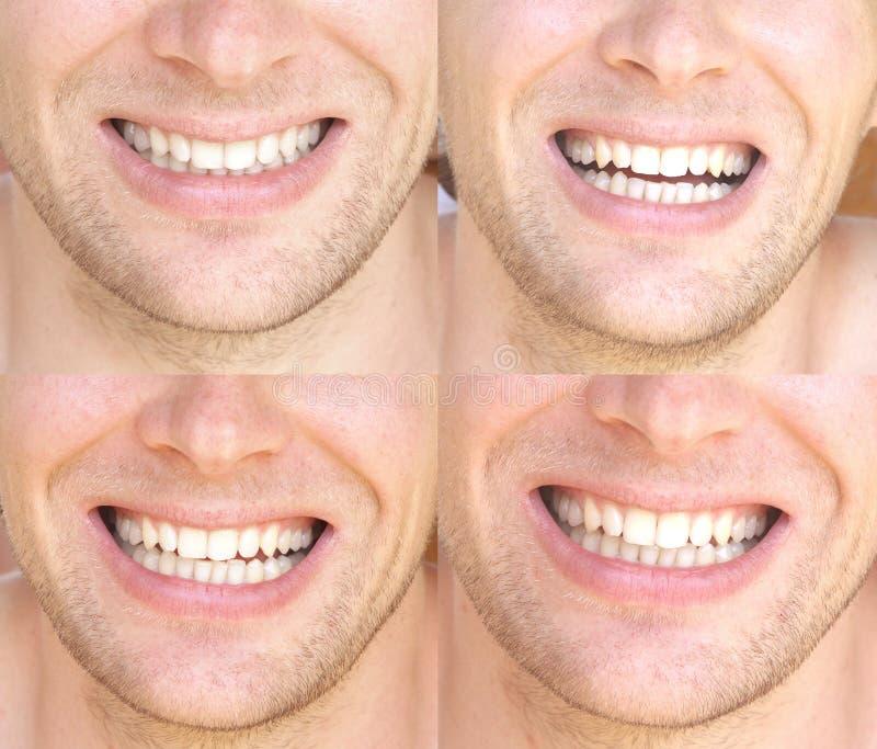 微笑面孔人以自然白色牙拼贴画牙齿健康 免版税库存图片