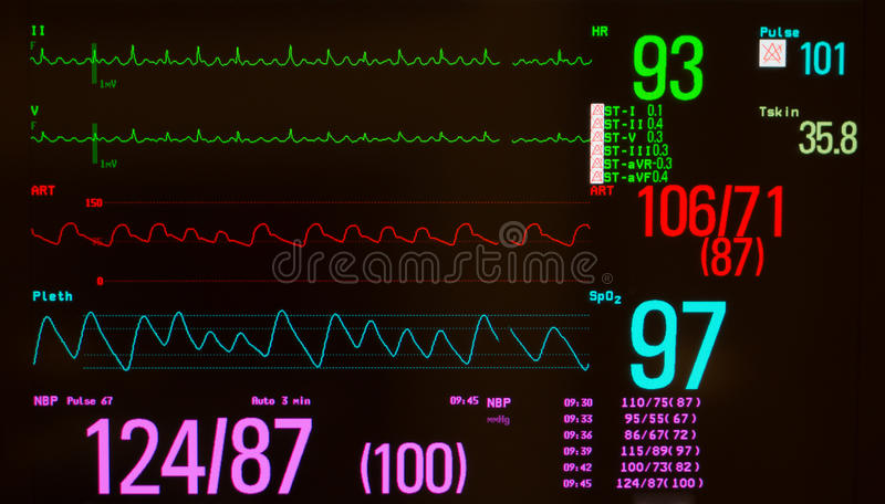 心房的振翼和重要标志 免版税库存图片