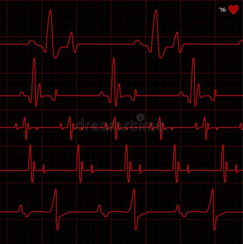 心电图向量 皇族释放例证