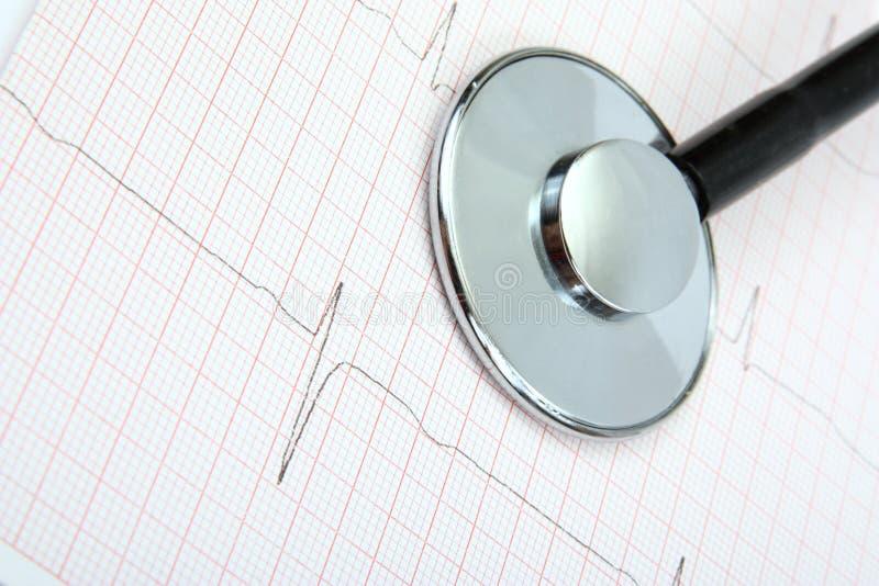 心电图和听诊器 免版税库存照片