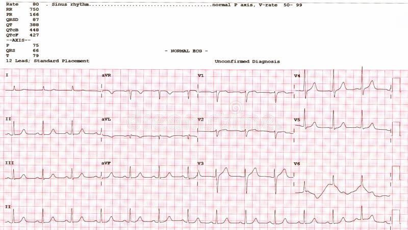 心电图 从显示正常EKG测试的EKG的信号波形 免版税库存照片