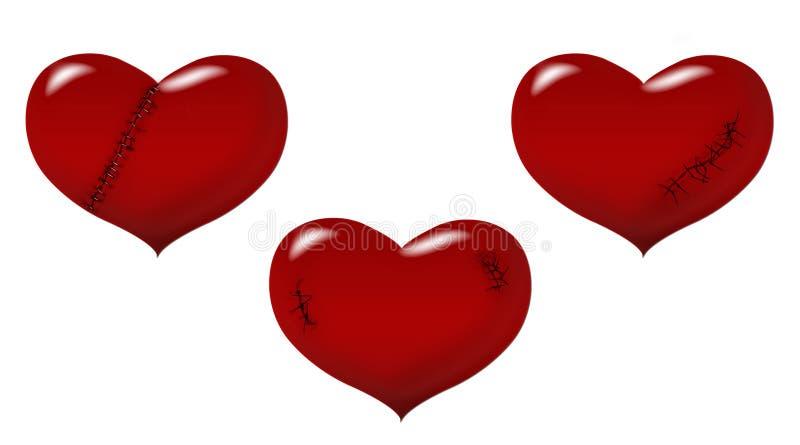 心脏伤痕 库存例证