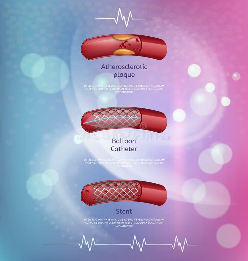 心脏成交方法横幅的胆固醇疾病 库存例证