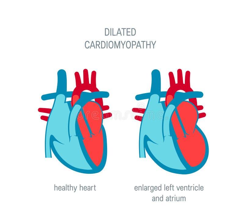 心脏疾患在平的样式的传染媒介概念 库存例证
