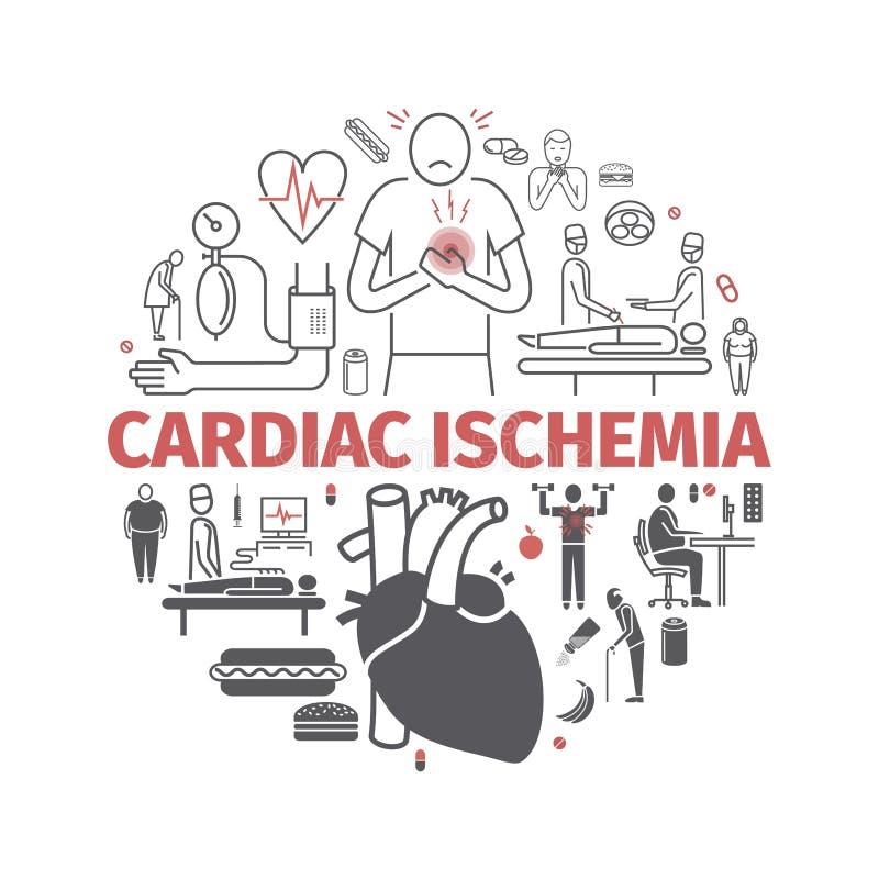 心脏病局部缺血横幅 症状,治疗 线被设置的象 网图表的传染媒介标志 向量例证