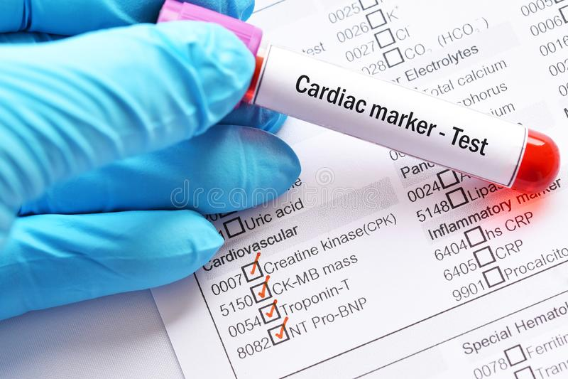 心脏病标志测试 免版税库存照片