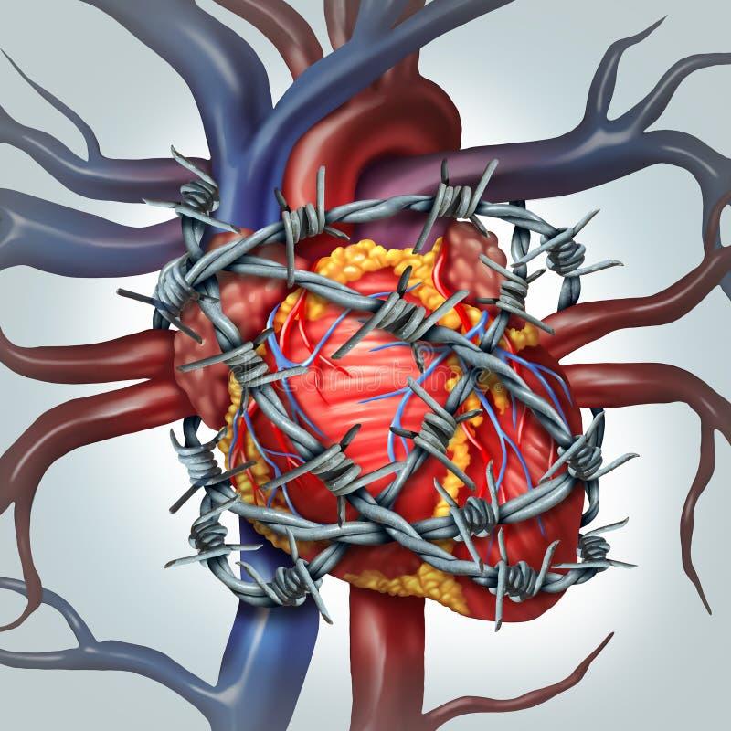 心脏痛苦 向量例证