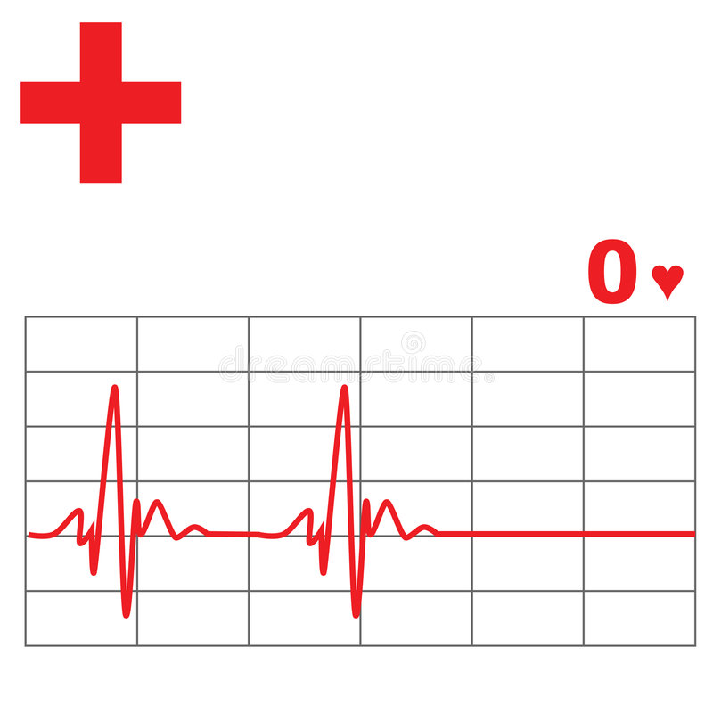 心脏监护器费率 库存例证