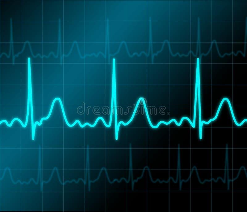 心脏监护器