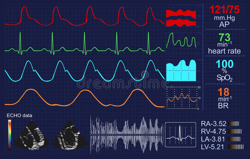 心跳显示器 向量例证