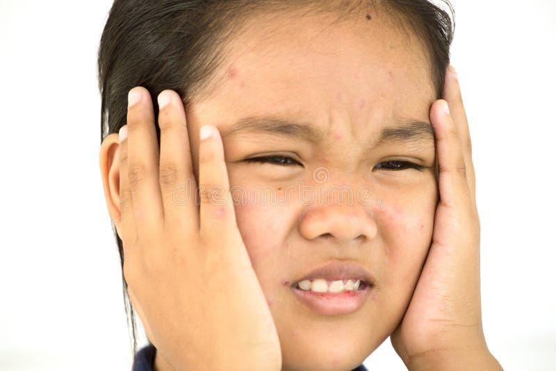 怏怏不乐的夫人对于在面孔的水痘 库存照片