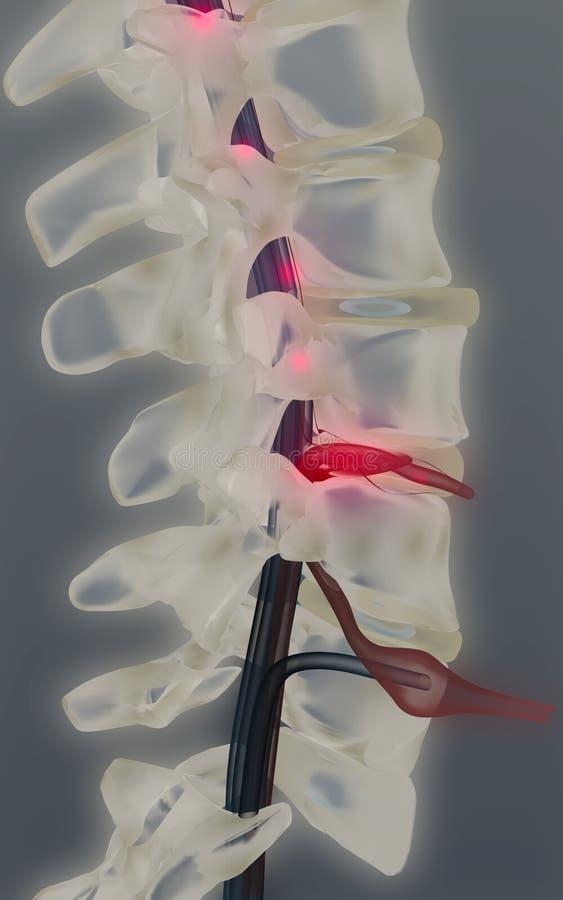 患疝气的椎骨盘 库存例证