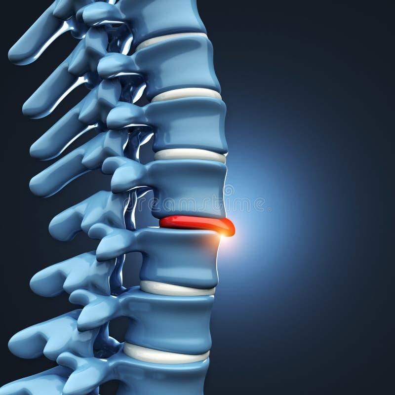 患疝气的盘人脊髓 库存例证