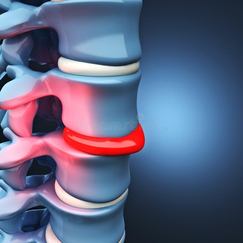 患疝气的盘人脊髓 向量例证