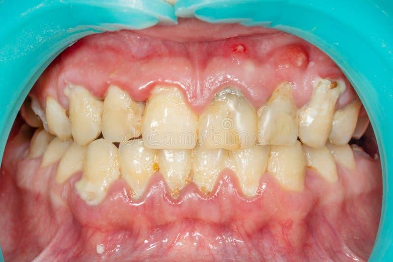 患者的匾,石头 牙齿plaq的牙科治疗 免版税图库摄影