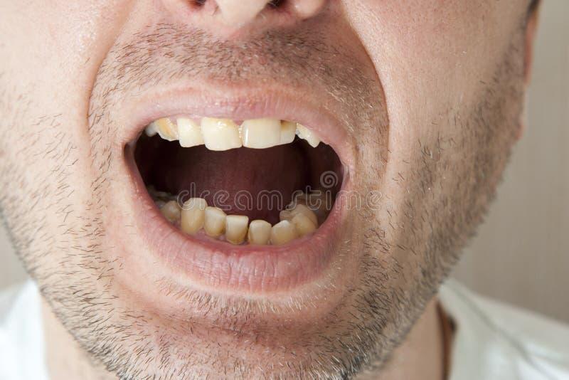 患者的害病的牙 免版税库存照片