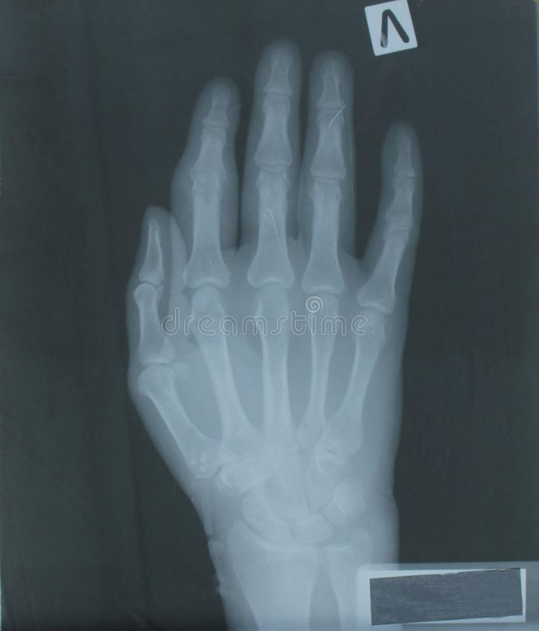 患者的手X-射线  免版税图库摄影