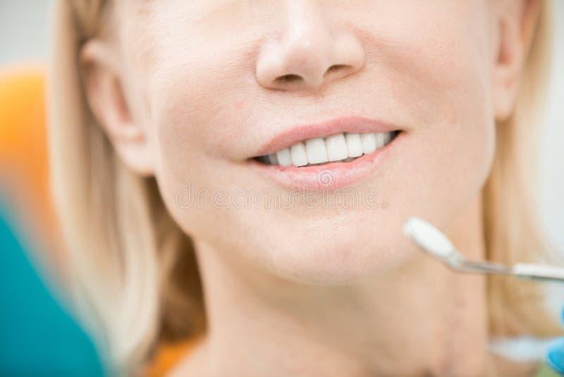 患者的牙 库存图片