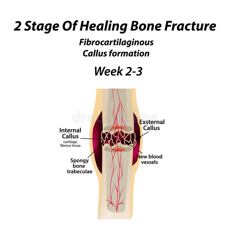 2愈合骨折阶段  老茧的形成 骨折 Infographics 在隔绝的传染媒介例证 向量例证