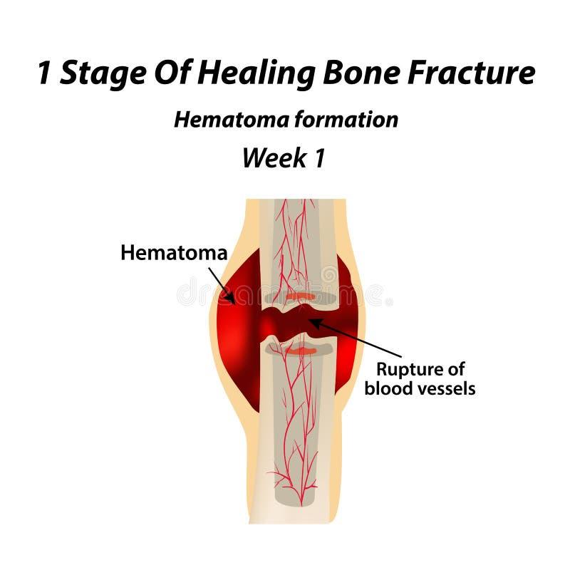 愈合骨折1个阶段  老茧的形成 骨折 Infographics 在隔绝的传染媒介例证 库存例证