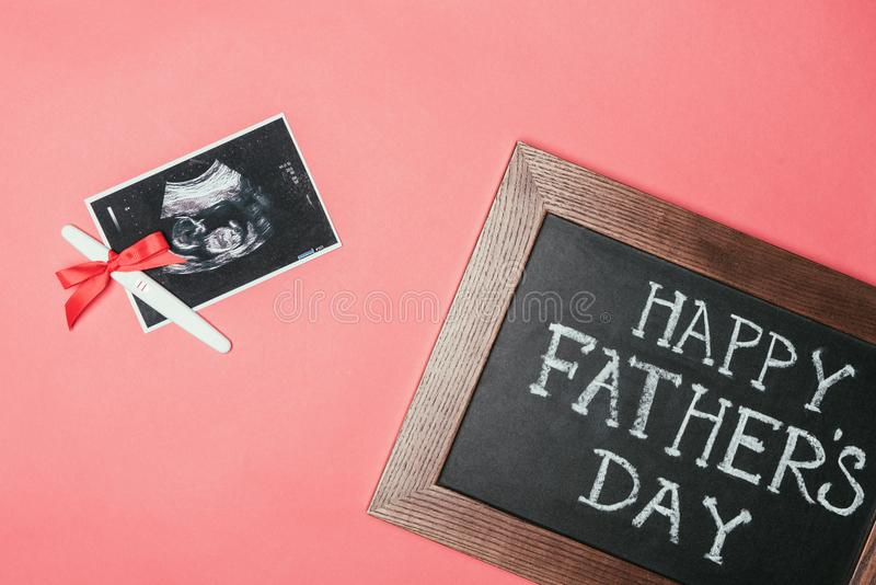 愉快的父亲节黑板、超声波扫描和妊娠试验顶视图与丝带 库存照片
