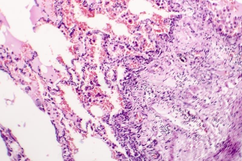 慢性肺充血和肿鼓 免版税库存图片