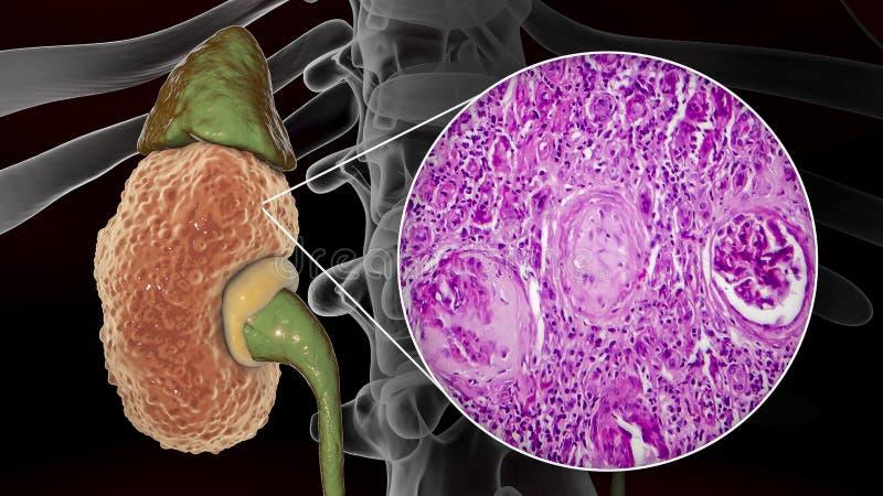 慢性肾小球肾炎,严重病理 向量例证