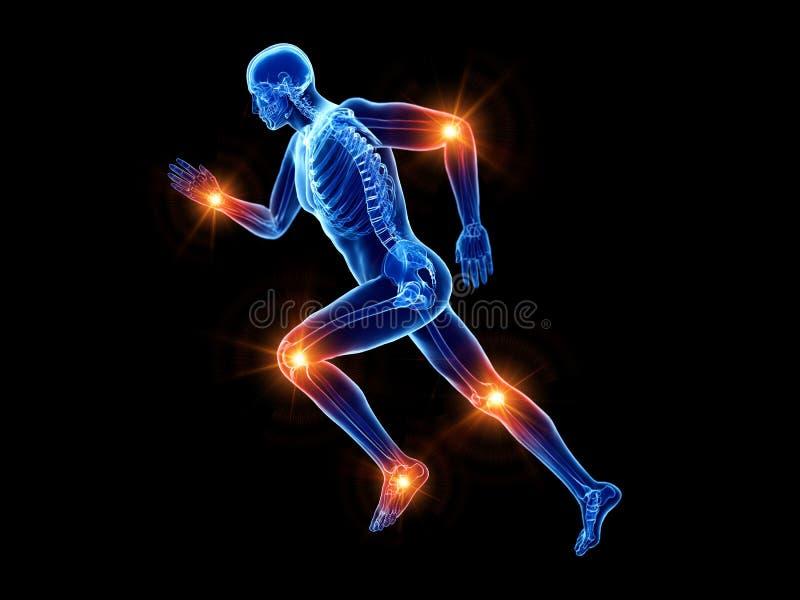 慢跑者痛苦的联接 向量例证